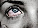 Clínica Oftalmológica Novovisión Murcia: Síndrome de Sjögren y ojo seco